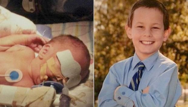 O antes e depois de Dwight, filho de Melissa Gardner (Arquivo pessoal/Facebook)