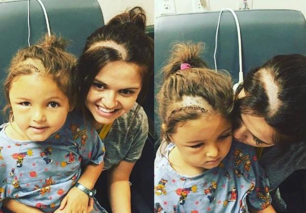 Mãe raspa o cabelo para ficar igual à filha que fez cirurgia no cérebro