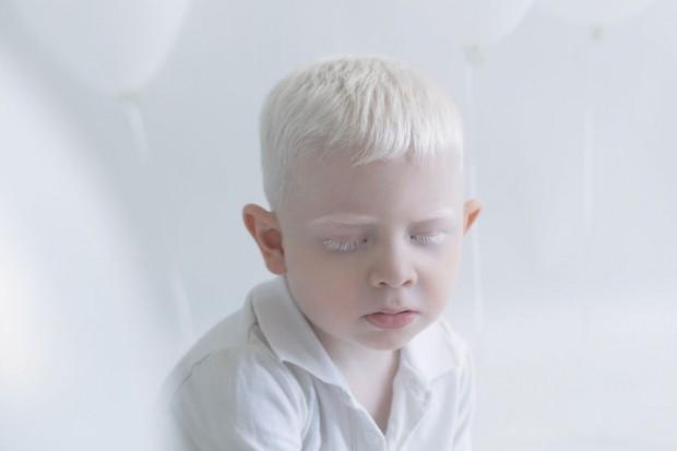 Fotografias-de-pessoas-albinas-por-Yulia-Taits-Russell