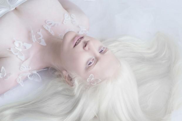 Fotógrafa faz ensaio encantador com pessoas albinas